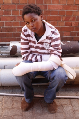 The wounded activist at Con Hill where she attended JhP People's Pride launch on the 17th Aug. 2013. Photo by Thekwane Bongi Mpisholo